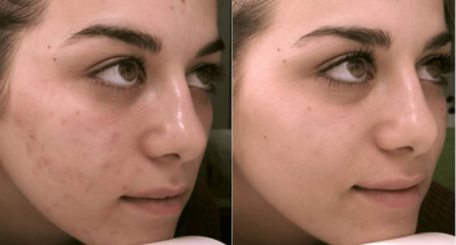 peeling antes y despues